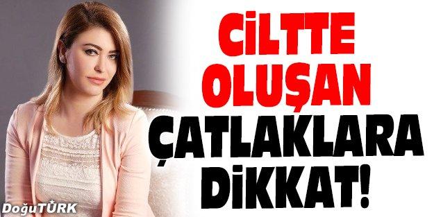 CİLTTE OLUŞAN ÇATLAKLARA DİKKAT!