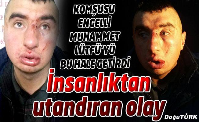 OTİZMLİ MUHAMMET'İ BU HALE BİR ASTSUBAY GETİRDİ