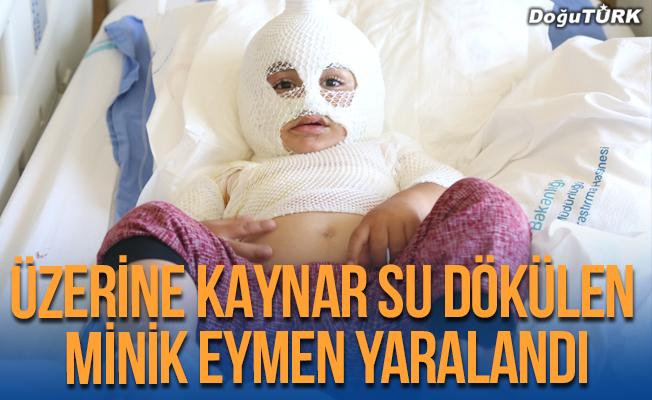 Üzerine kaynar su dökülen Eymen yaralandı!