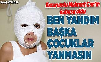 Ateşle oyun Erzurumlu Mehmet Can'ın kâbusu oldu